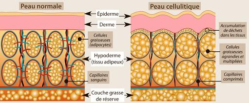 celullite