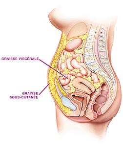 graisse-viscérale-abdominale